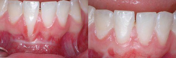 i-PRF metode zobārstniecībā