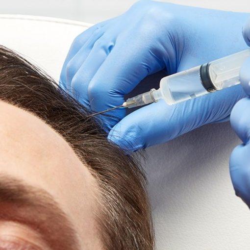 Bagātināta fibrīna injekcijas alopēcijas mazināšanai