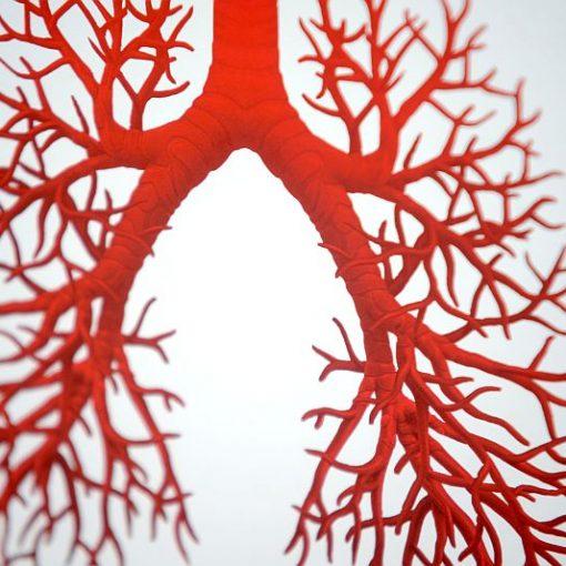 Idiopatiska plaušu fibroze